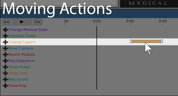 This screenshot shows the timeline actions.